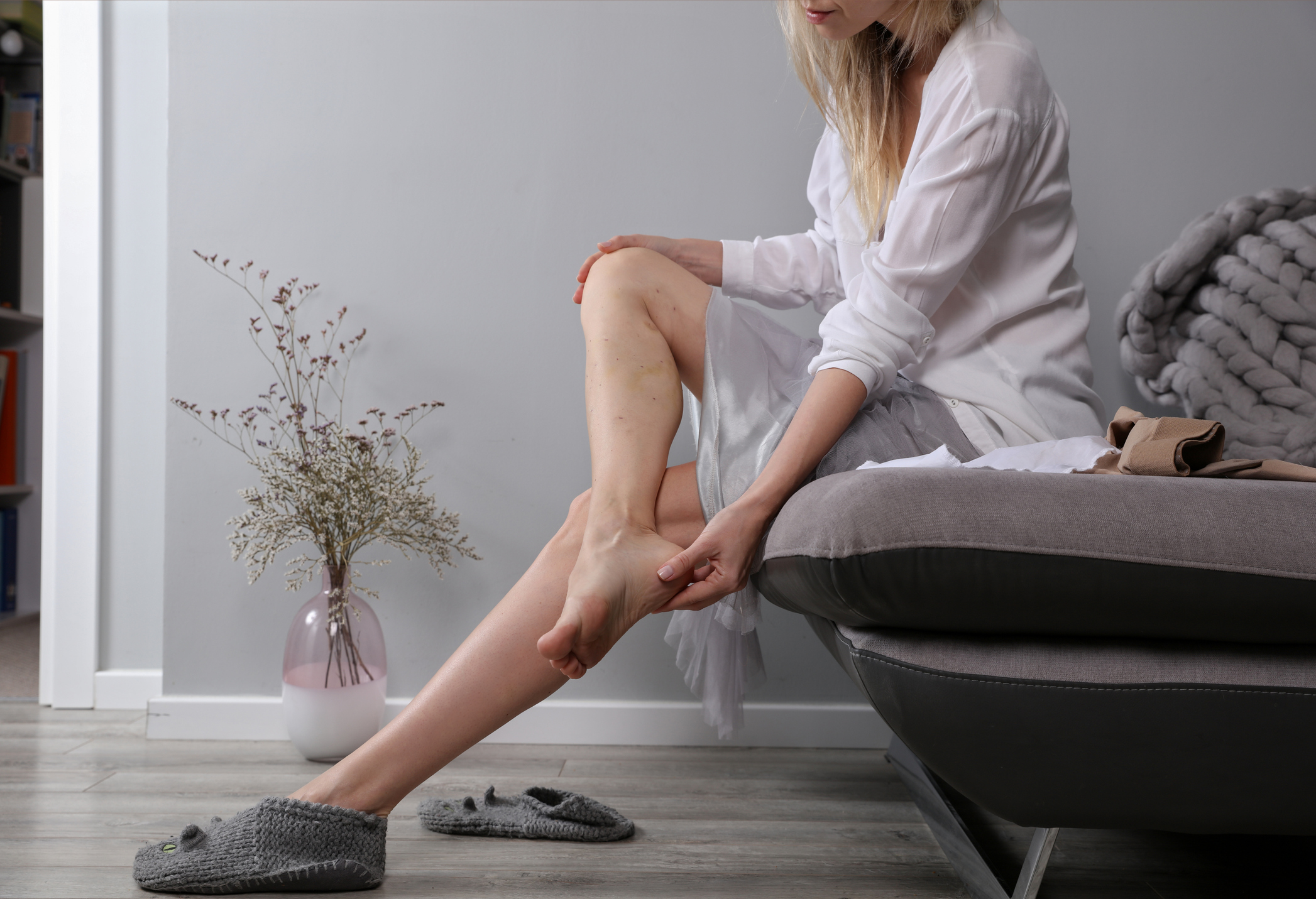 What to Expect After Sclerotherapy Treatment
